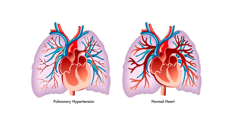 Eficacia-y-seguridad-del-entrenamiento-y-rehabilitación-en-pacientes-con-hipertensión-pulmonar