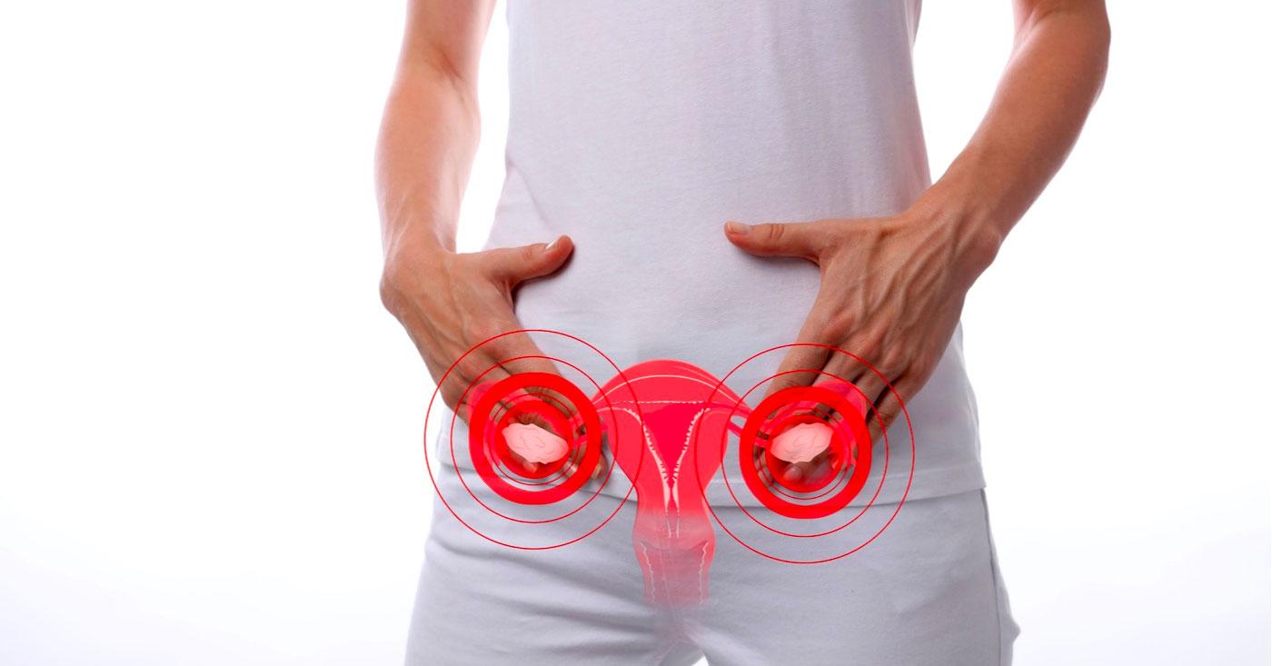 Intervención-con-ejercicio-en-el-síndrome-del-ovario-poliquístico