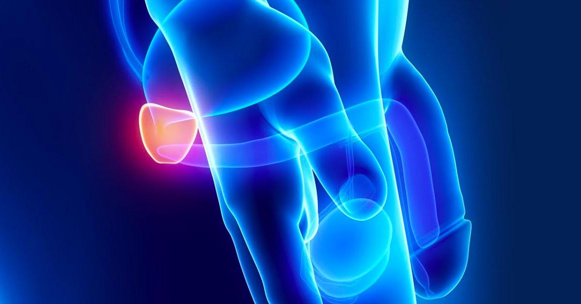 Dosis-de-Ejercicio-y-cáncer-de-próstata