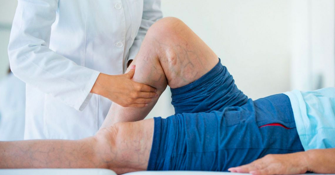 Asociación-entre-actividad-física-y-mortalidad-en-pacientes-con-claudicación-intermitente