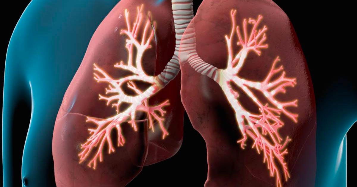 Entrenamiento de fuerza en pacientes con enfermedad pulmonar obstructiva crónica