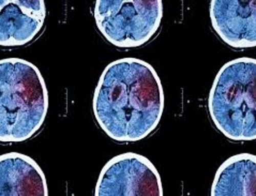Efectos del entrenamiento de los músculos inspiratorios sobre la capacidad de caminar en pacientes después de un ictus