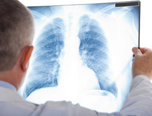 Efectos del entrenamiento de fuerza en pacientes con enfermedad pulmonar obstructiva crónica