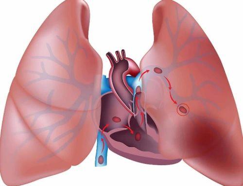 Beneficios de los programas de ejercicio en pacientes con hipertensión pulmonar