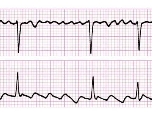 ¿El entrenamiento de resistencia aeróbica de alta intensidad está asociado con fibrosis en aurícula izquierda?