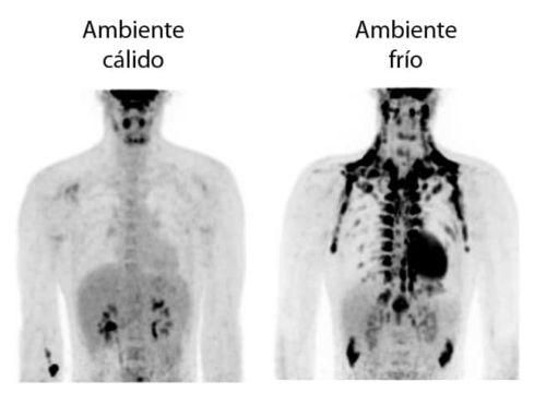 Mecanismos endocrinos que conectan el ejercicio con el metabolismo del tejido adiposo pardo